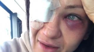 UFC, Karolina Kowalkiewicz