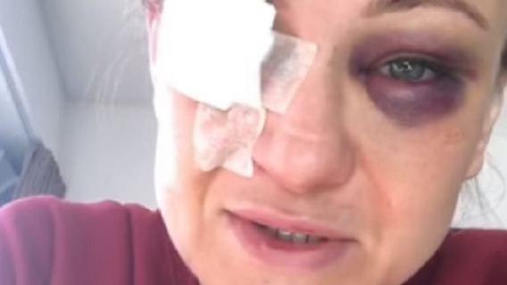 Fatalna kontuzja oka polskiej zawodniczki MMA. Lekarze postawili ostateczną diagnozę (WIDEO)