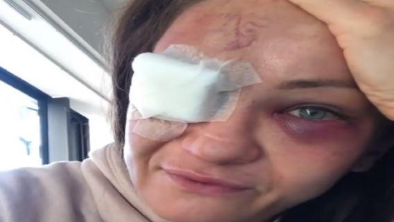 Nowe informacje w sprawie zdrowia Karoliny Kowalkiewicz. Zawodniczka mogła stracić wzrok, oficjalny komunikat lekarzy