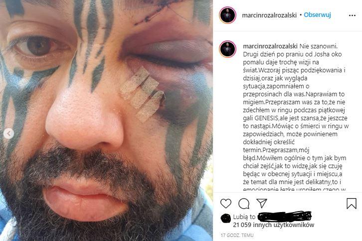 Marcin Różal Różalski oko/Instagram