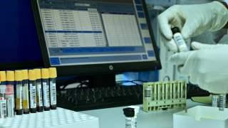 Doping próbki